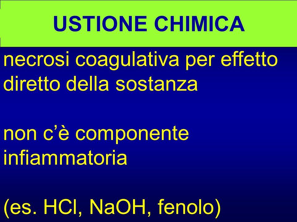 USTIONE CHIMICA necrosi coagulativa per effetto diretto della sostanza non c'è componente infiammatoria (es.