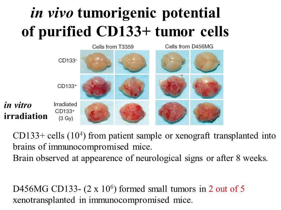 in vivo tumorigenic potential of purified CD133+ tumor cells D456MG CD133- (2 x 10 6 ) formed small tumors in 2 out of 5 xenotransplanted in immunocom