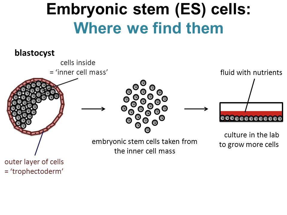 Sommario: Processo Metastatico Le cellule metastatiche sono cellule staminali cancerose migranti????