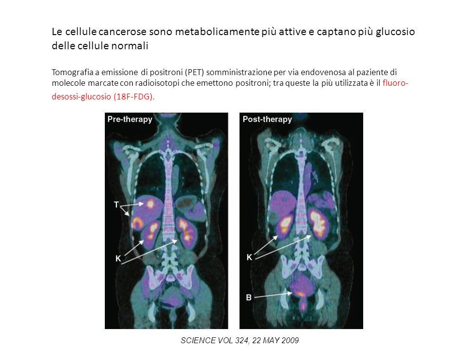 Le cellule cancerose sono metabolicamente più attive e captano più glucosio delle cellule normali Tomografia a emissione di positroni (PET) somministr