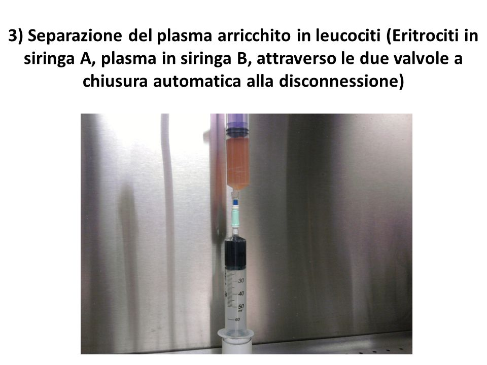 3) Separazione del plasma arricchito in leucociti (Eritrociti in siringa A, plasma in siringa B, attraverso le due valvole a chiusura automatica alla disconnessione)