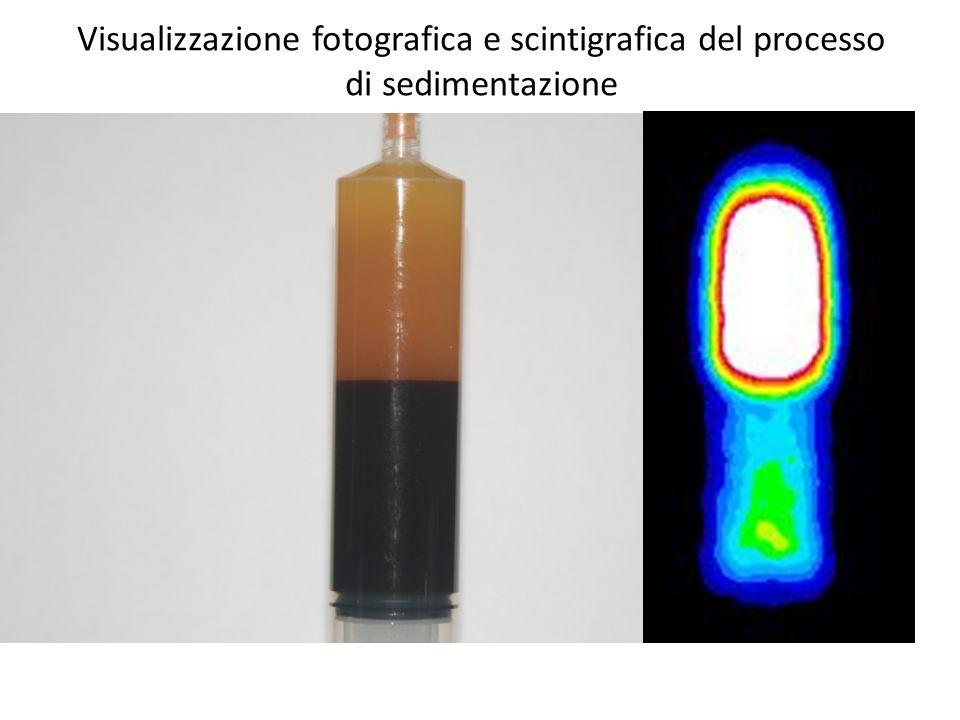 Visualizzazione fotografica e scintigrafica del processo di sedimentazione