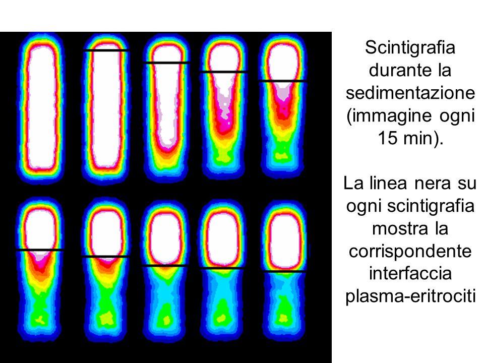 Scintigrafia durante la sedimentazione (immagine ogni 15 min). La linea nera su ogni scintigrafia mostra la corrispondente interfaccia plasma-eritroci
