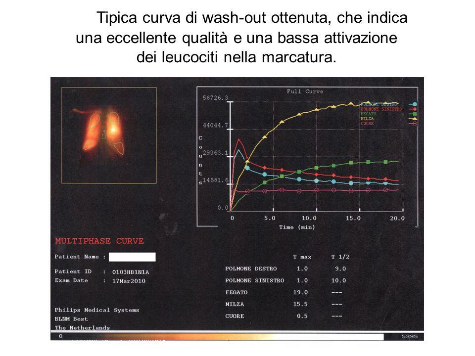 Tipica curva di wash-out ottenuta, che indica una eccellente qualità e una bassa attivazione dei leucociti nella marcatura.