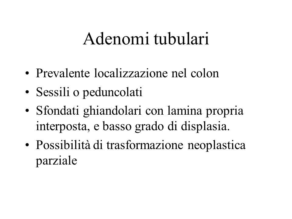 Adenomi tubulari Prevalente localizzazione nel colon Sessili o peduncolati Sfondati ghiandolari con lamina propria interposta, e basso grado di displa