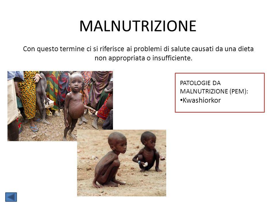 MALNUTRIZIONE Con questo termine ci si riferisce ai problemi di salute causati da una dieta non appropriata o insufficiente. PATOLOGIE DA MALNUTRIZION