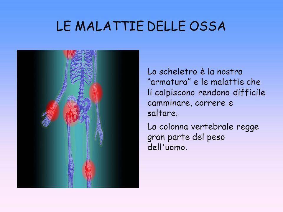 """Lo scheletro è la nostra """"armatura"""" e le malattie che li colpiscono rendono difficile camminare, correre e saltare. La colonna vertebrale regge gran p"""