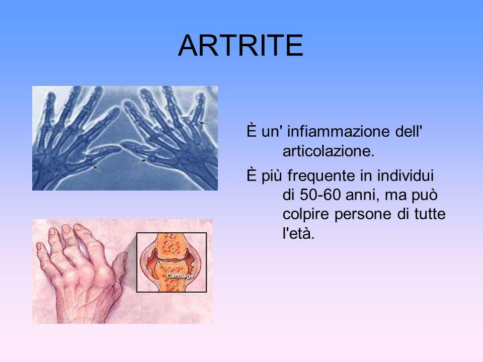 ARTRITE È un' infiammazione dell' articolazione. È più frequente in individui di 50-60 anni, ma può colpire persone di tutte l'età.