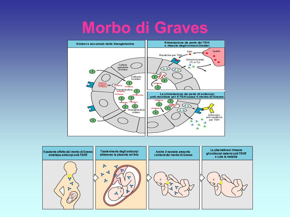 Morbo di Graves