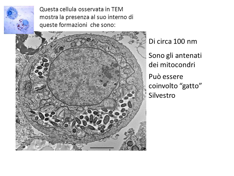 Questa cellula osservata in TEM mostra la presenza al suo interno di queste formazioni che sono: Di circa 100 nm Sono gli antenati dei mitocondri Può essere coinvolto gatto Silvestro