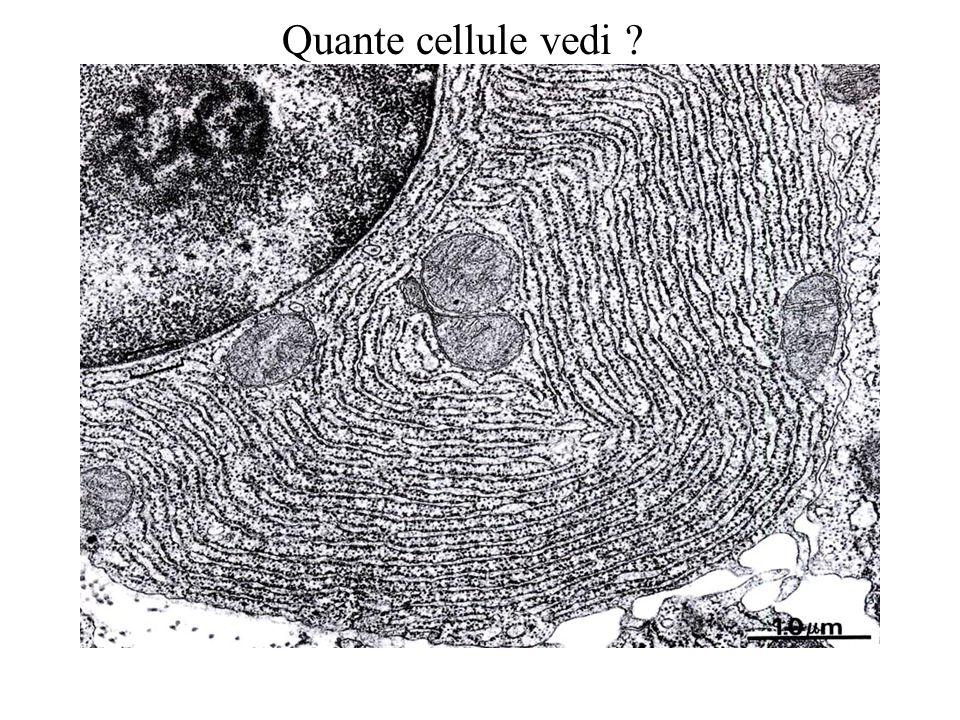 (i granuli evidenziano LAMP-1 in un corpo multivescolare)