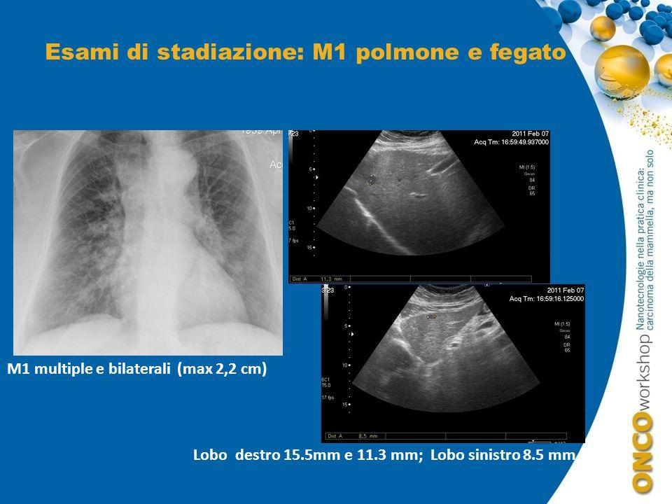Esami di stadiazione: M1 polmone e fegato M1 multiple e bilaterali (max 2,2 cm) Lobo destro 15.5mm e 11.3 mm; Lobo sinistro 8.5 mm