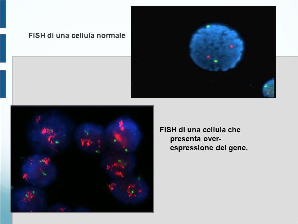 FISH di una cellula che presenta over- espressione del gene. FISH di una cellula normale