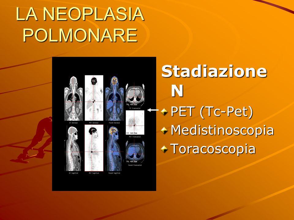 LA NEOPLASIA POLMONARE Stadiazione N Stadiazione N PET (Tc-Pet) MedistinoscopiaToracoscopia