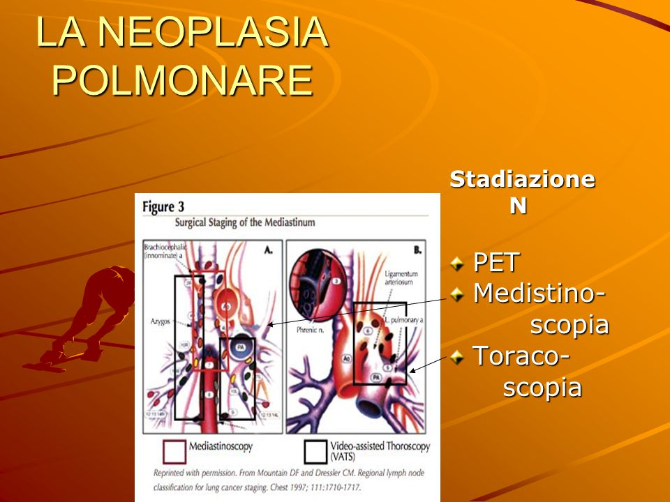 LA NEOPLASIA POLMONARE Stadiazione Stadiazione NPETMedistino- scopia scopiaToraco-