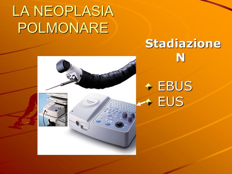 LA NEOPLASIA POLMONARE Stadiazione Stadiazione N EBUS EBUS EUS EUS