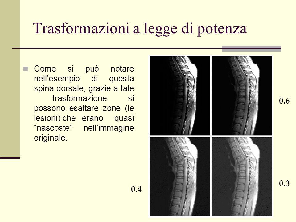 """Come si può notare nell'esempio di questa spina dorsale, grazie a tale trasformazione si possono esaltare zone (le lesioni) che erano quasi """"nascoste"""""""