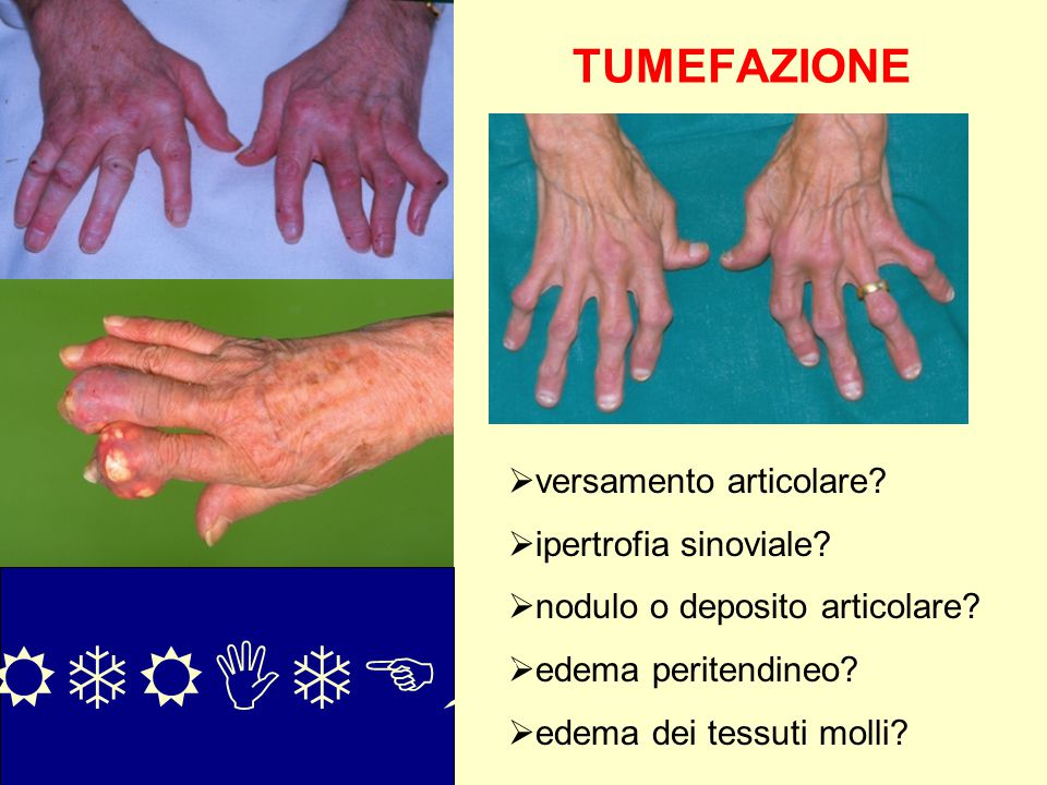 TUMEFAZIONE  versamento articolare?  ipertrofia sinoviale?  nodulo o deposito articolare?  edema peritendineo?  edema dei tessuti molli? ARTRITE?