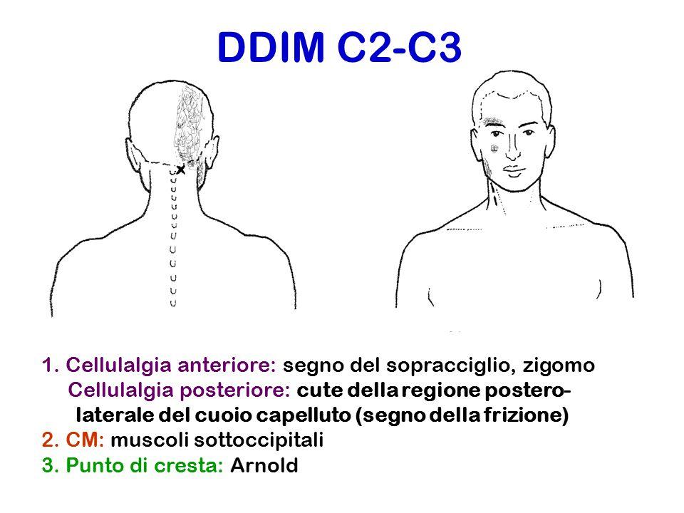 DDIM C2-C3 1. Cellulalgia anteriore: segno del sopracciglio, zigomo Cellulalgia posteriore: cute della regione postero- laterale del cuoio capelluto (