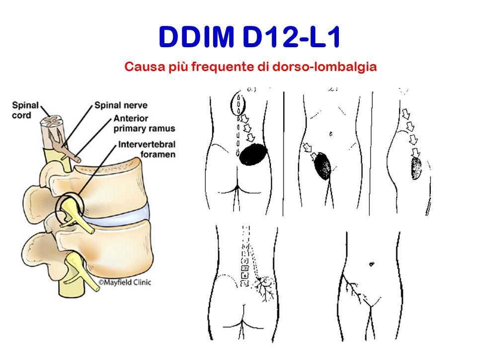 Causa più frequente di dorso-lombalgia DDIM D12-L1