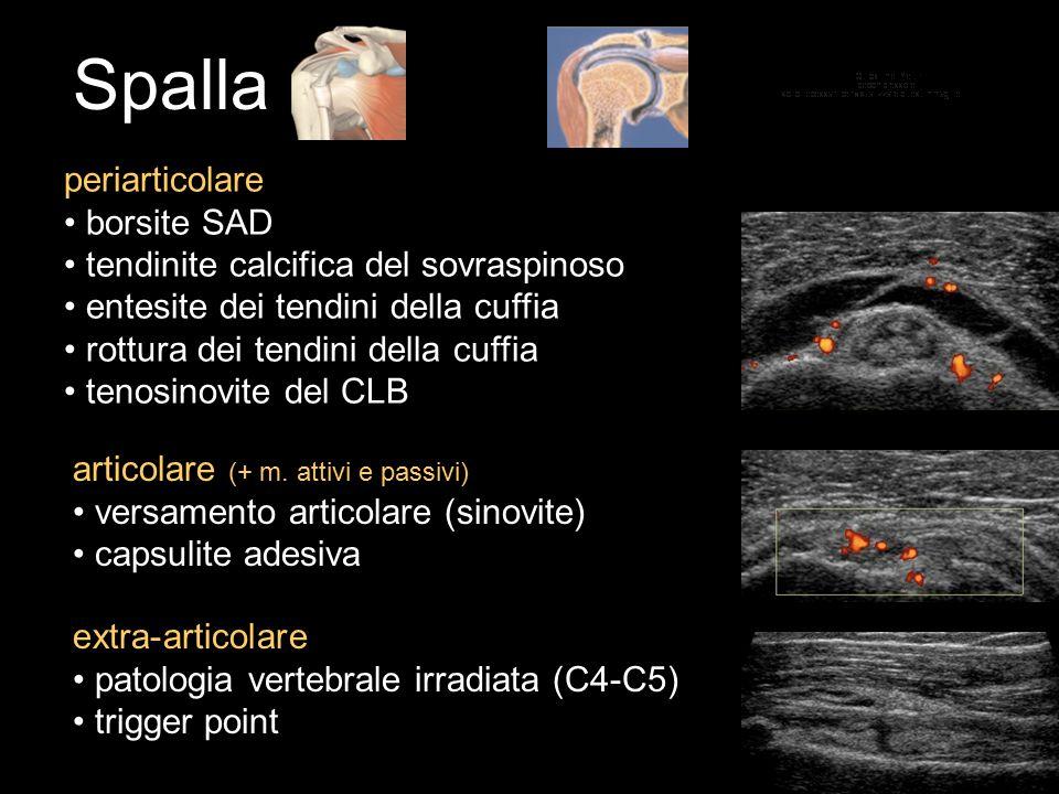Spalla periarticolare borsite SAD tendinite calcifica del sovraspinoso entesite dei tendini della cuffia rottura dei tendini della cuffia tenosinovite