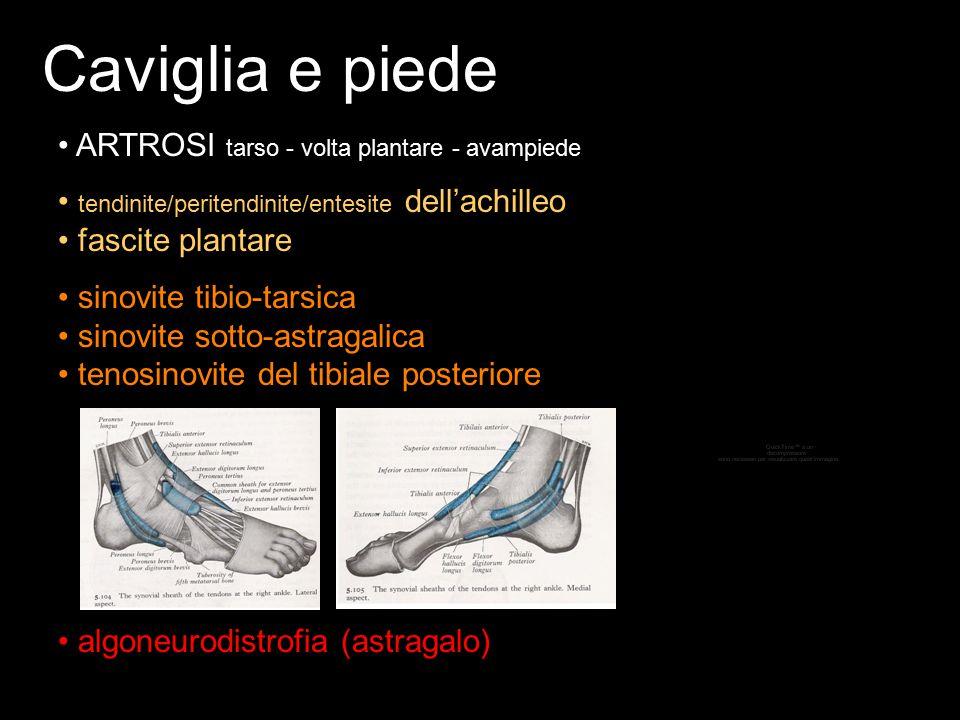 Caviglia e piede ARTROSI tarso - volta plantare - avampiede tendinite/peritendinite/entesite dell'achilleo fascite plantare algoneurodistrofia (astrag