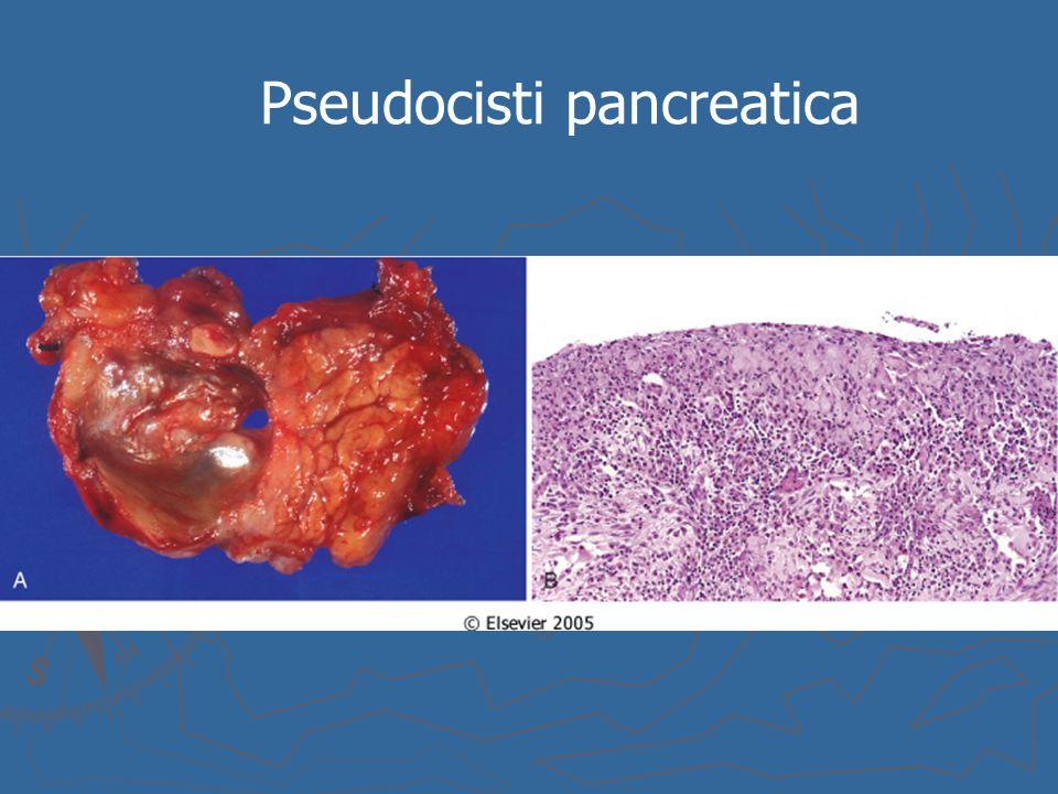 Pseudocisti pancreatica