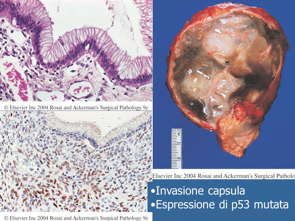 Invasione capsula Espressione di p53 mutata