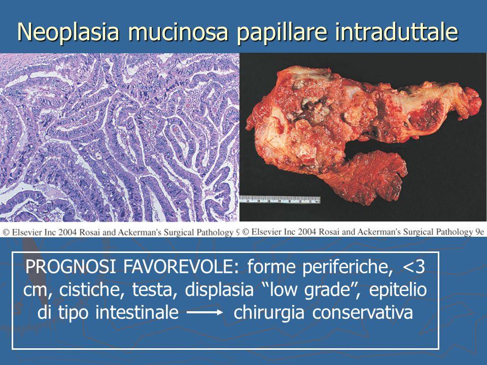 """Neoplasia mucinosa papillare intraduttale PROGNOSI FAVOREVOLE: forme periferiche, <3 cm, cistiche, testa, displasia """"low grade"""", epitelio di tipo inte"""