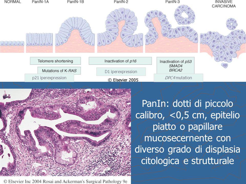 PanIn: dotti di piccolo calibro, <0,5 cm, epitelio piatto o papillare mucosecernente con diverso grado di displasia citologica e strutturale p21 ipere