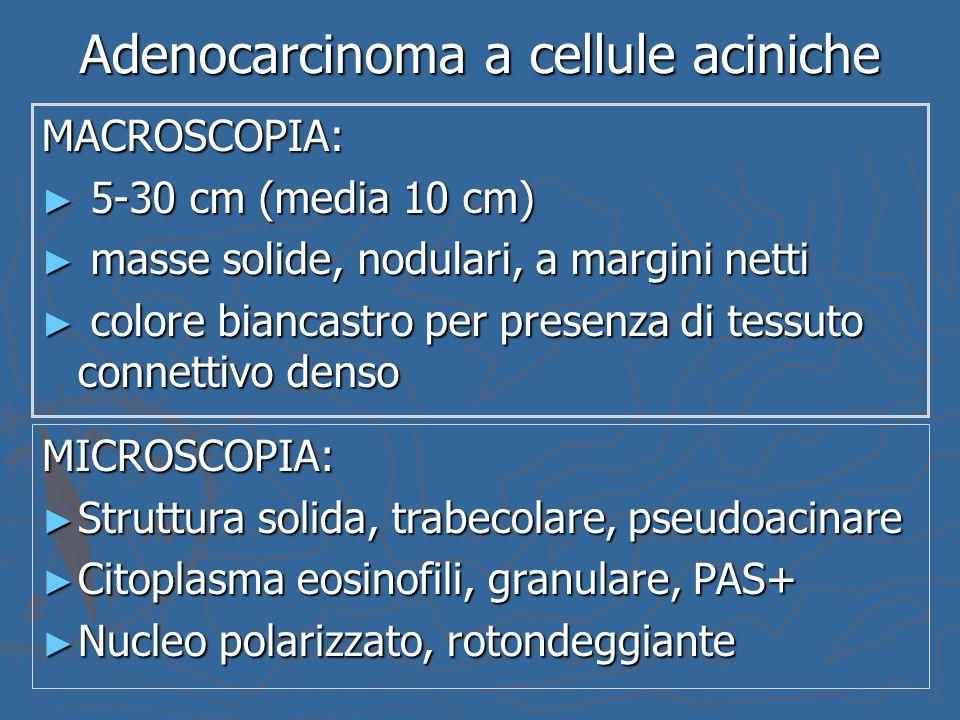 Adenocarcinoma a cellule aciniche MACROSCOPIA: ► 5-30 cm (media 10 cm) ► masse solide, nodulari, a margini netti ► colore biancastro per presenza di t