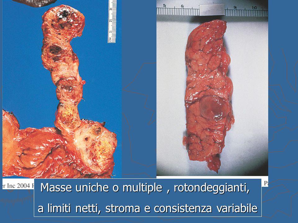 Masse uniche o multiple, rotondeggianti, a limiti netti, stroma e consistenza variabile