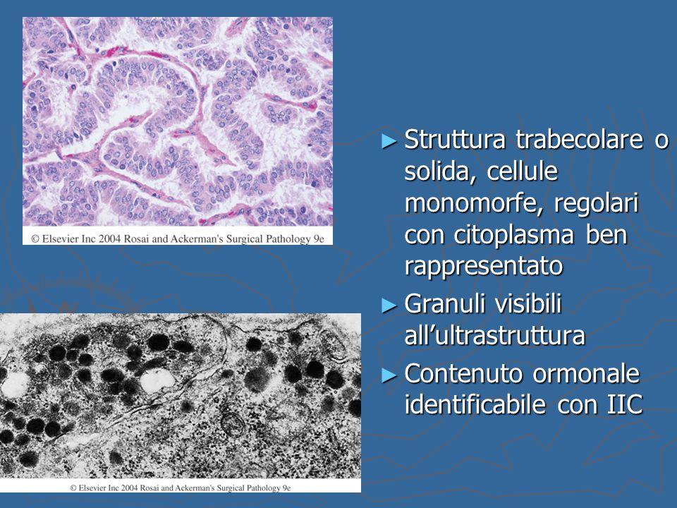 ► Struttura trabecolare o solida, cellule monomorfe, regolari con citoplasma ben rappresentato ► Granuli visibili all'ultrastruttura ► Contenuto ormon