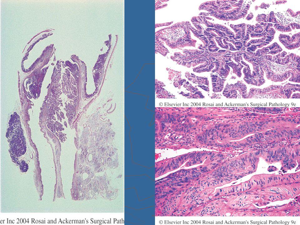 MiCRO: Adenocarcinomi spesso papillari