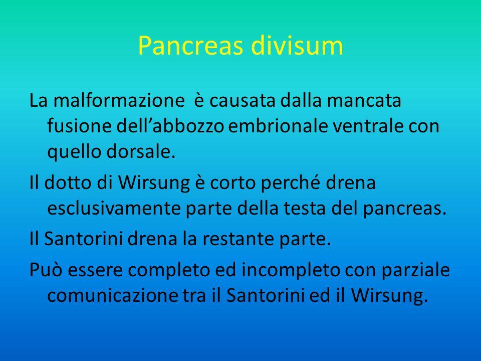 Pancreas divisum La malformazione è causata dalla mancata fusione dell'abbozzo embrionale ventrale con quello dorsale.