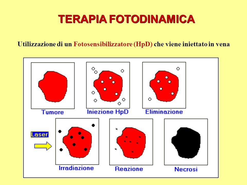 Utilizzazione di un Fotosensibilizzatore (HpD) che viene iniettato in vena TERAPIA FOTODINAMICA