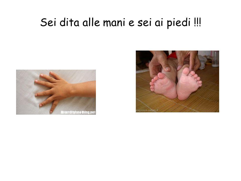 Sei dita alle mani e sei ai piedi !!!