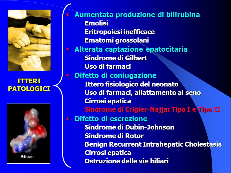  Aumentata produzione di bilirubina Emolisi Eritropoiesi inefficace Ematomi grossolani  Alterata captazione epatocitaria Sindrome di Gilbert Uso di farmaci  Difetto di coniugazione Ittero fisiologico del neonato Uso di farmaci, allattamento al seno Cirrosi epatica Sindrome di Crigler-Najjar Tipo I e Tipo II  Difetto di escrezione Sindrome di Dubin-Johnson Sindrome di Rotor Benign Recurrent Intrahepatic Cholestasis Cirrosi epatica Ostruzione delle vie biliari ITTERI PATOLOGICI