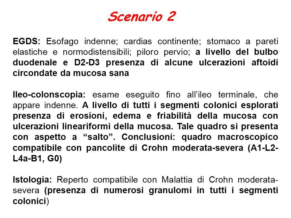 Scenario 2 EGDS: Esofago indenne; cardias continente; stomaco a pareti elastiche e normodistensibili; piloro pervio; a livello del bulbo duodenale e D