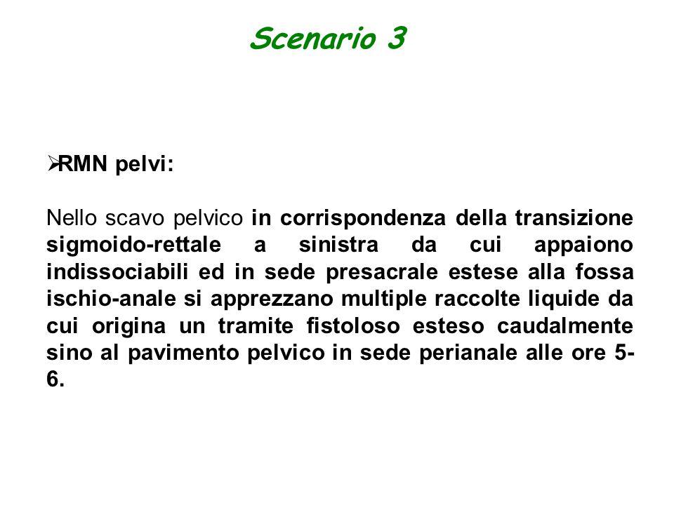 Scenario 3  RMN pelvi: Nello scavo pelvico in corrispondenza della transizione sigmoido-rettale a sinistra da cui appaiono indissociabili ed in sede