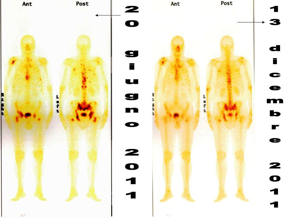 Univariate Model of Overall Survival in PC Patients 3-Month PTH as Quartiles 01.0 Risk ratio 2.03.0 Reduced risk of death Increased risk of death.704 0.89 Placebo (vs 0 ≤ 3M PTH < 2.10 pmol/L) 4.0 P value.445 0.80.401 0.77 2.10 ≤ 3 M PTH < 3.10 3.10 ≤ 3 M PTH < 4.45 4.45 ≤ 3 M PTH.274 1.30 Zoledronic acid (vs 0 ≤ 3M PTH < 3.10 pmol/L).006 1.88 <.0001 3.04 3.10 ≤ 3 M PTH < 5.10 5.10 ≤ 3 M PTH < 8.80 8.80 ≤ 3 M PTH (4.7)