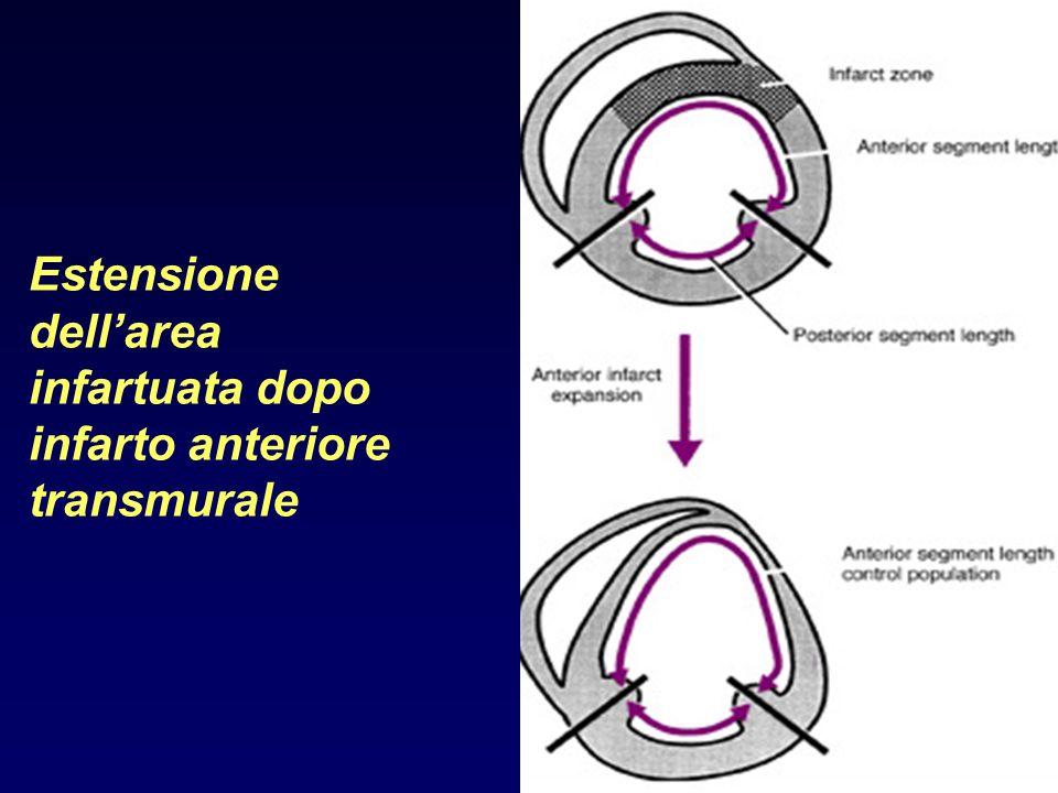 Estensione dell'area infartuata dopo infarto anteriore transmurale