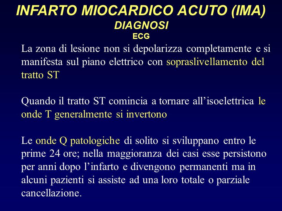 INFARTO MIOCARDICO ACUTO (IMA) DIAGNOSI ECG La zona di lesione non si depolarizza completamente e si manifesta sul piano elettrico con sopraslivellame