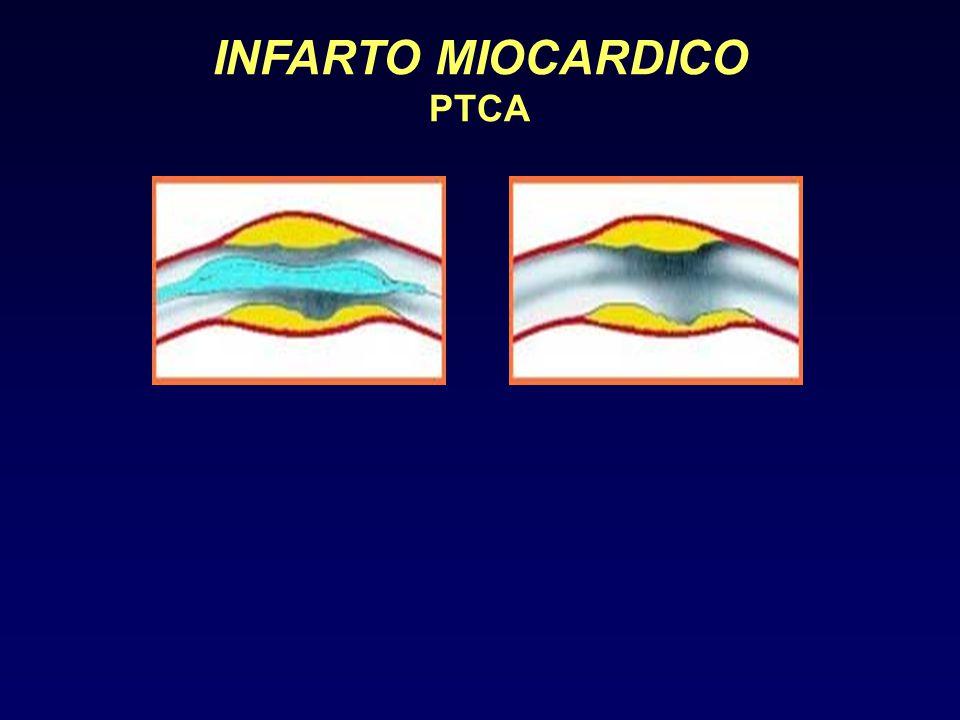 INFARTO MIOCARDICO PTCA