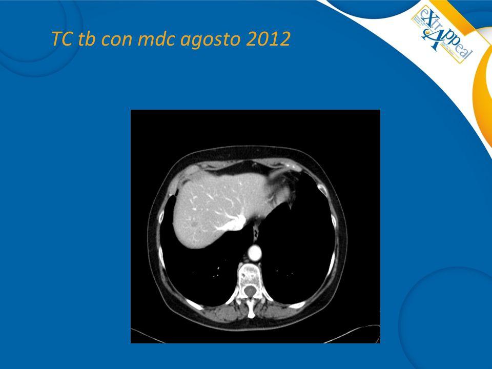 TC tb con mdc agosto 2012