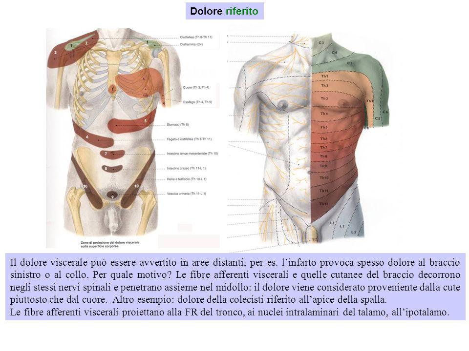 Dolore riferito Il dolore viscerale può essere avvertito in aree distanti, per es. l'infarto provoca spesso dolore al braccio sinistro o al collo. Per