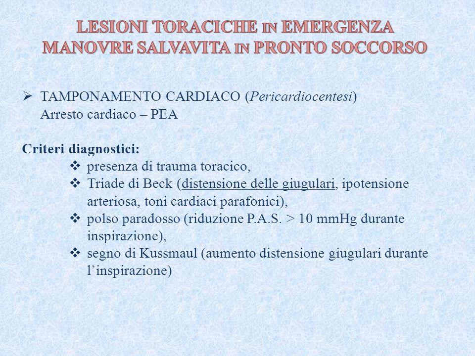 TAMPONAMENTO CARDIACO (Pericardiocentesi) Arresto cardiaco – PEA Criteri diagnostici:  presenza di trauma toracico,  Triade di Beck (distensione d