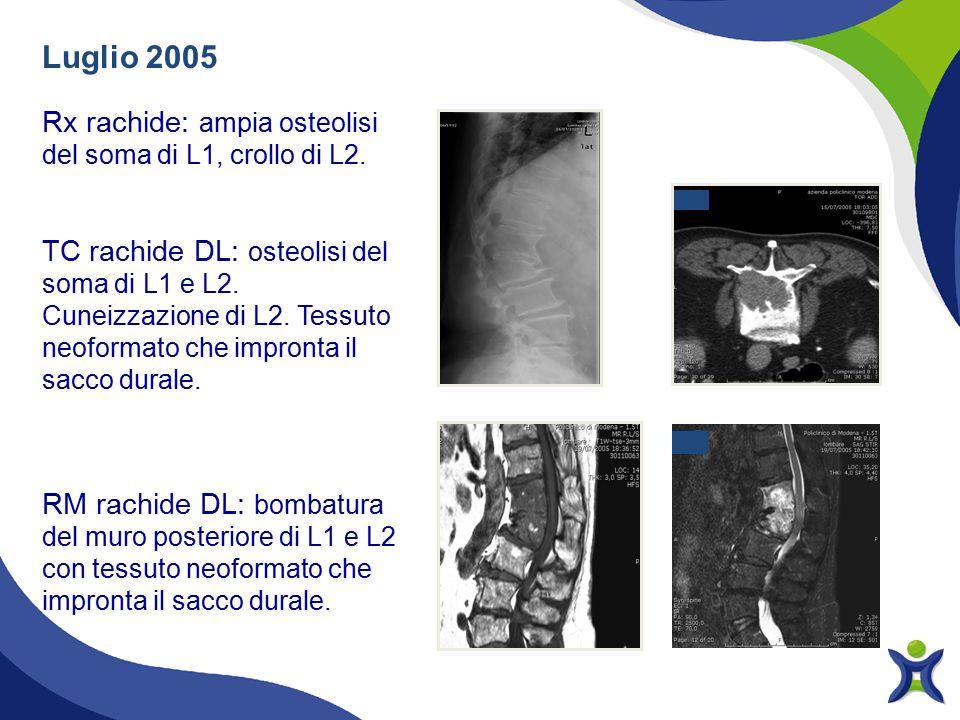 Luglio 2005 Rx rachide: ampia osteolisi del soma di L1, crollo di L2. TC rachide DL: osteolisi del soma di L1 e L2. Cuneizzazione di L2. Tessuto neofo