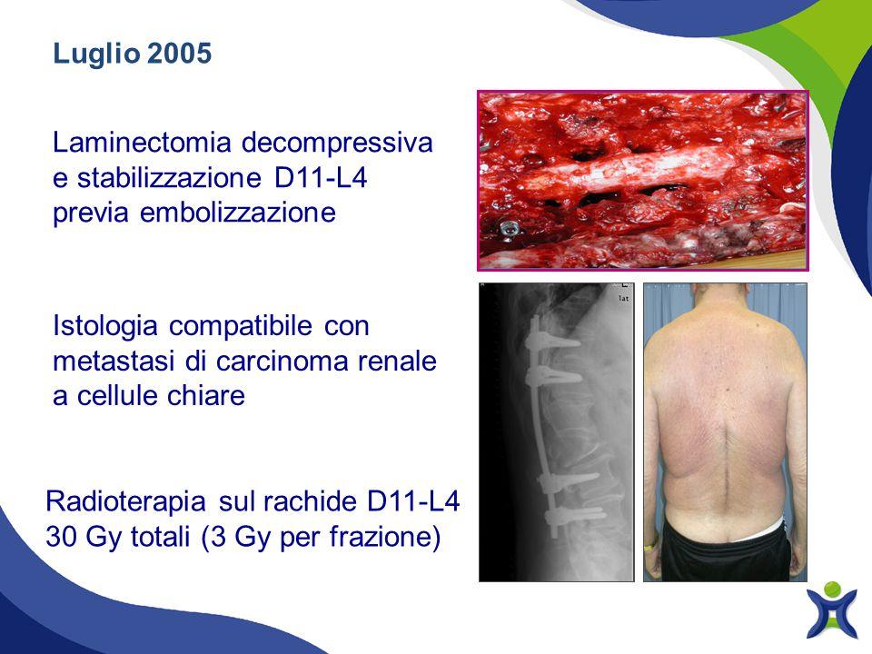Luglio 2005 Laminectomia decompressiva e stabilizzazione D11-L4 previa embolizzazione Radioterapia sul rachide D11-L4 30 Gy totali (3 Gy per frazione)