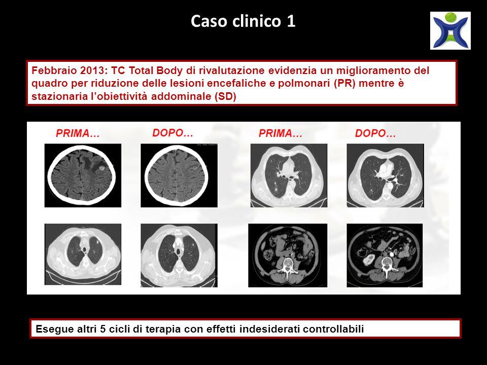 Caso clinico 1 Febbraio 2013: TC Total Body di rivalutazione evidenzia un miglioramento del quadro per riduzione delle lesioni encefaliche e polmonari